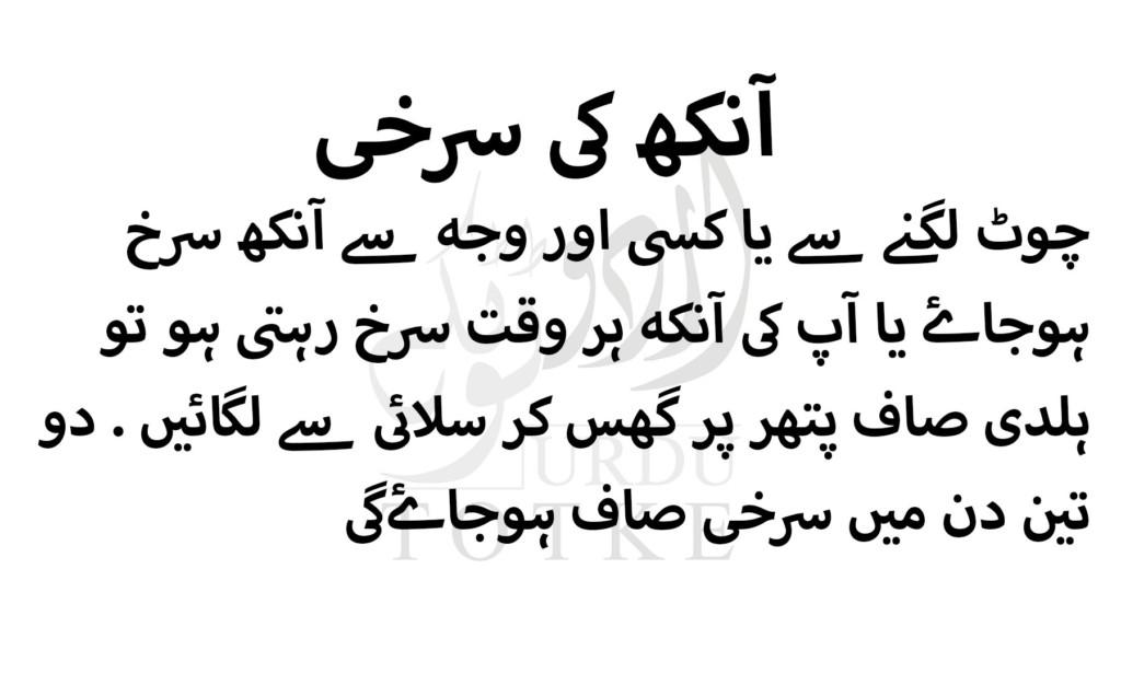 eye allergy treatment in urdu